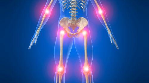 dureri-articulații